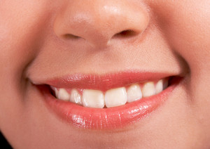 笑顔と白い歯ハッピー